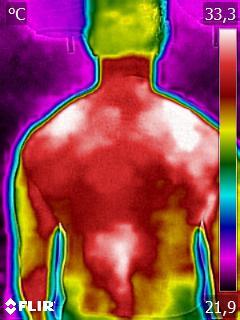 Como a termografia pode ajudar a prevenir as dores
